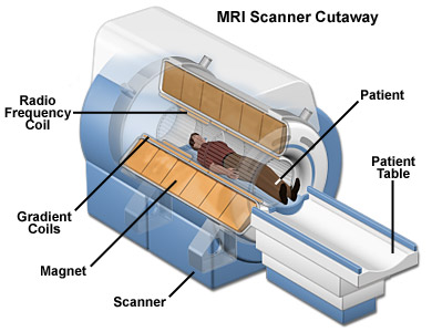 Magnetic Resonance Imaging or MRI