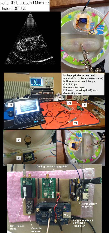 build-diy-ultrasound-machine-under-500-usd