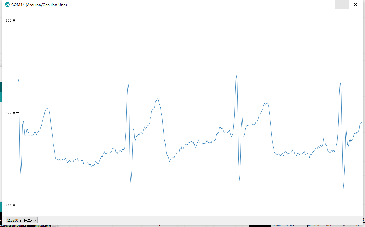 Arduino AD8232 Single Lead ECG Module